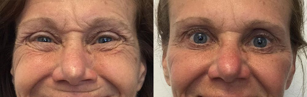Botox Gallery - Patient 54877566 - Image 2