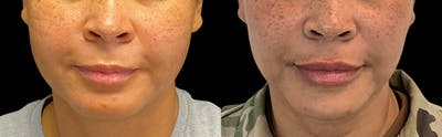 Buccal Fat Removal Gallery - Patient 55029162 - Image 1
