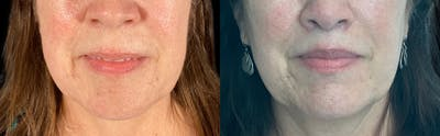 Buccal Fat Removal Gallery - Patient 55029163 - Image 1