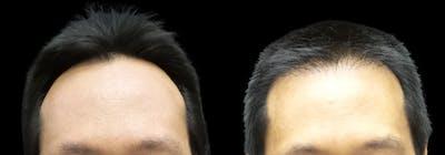 Hair Restoration Gallery - Patient 55029204 - Image 1