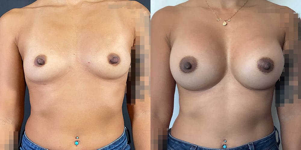 Breast Augmentation Gallery - Patient 55272482 - Image 1