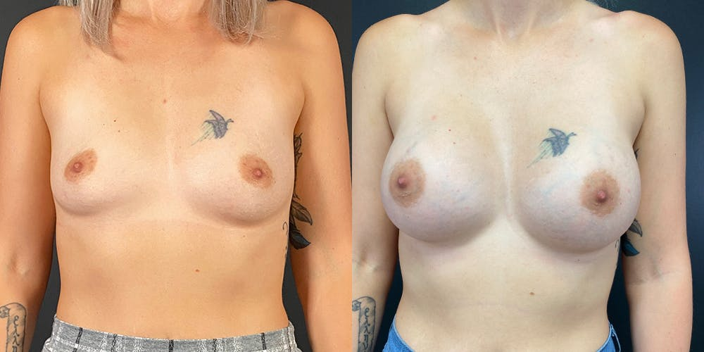 Breast Augmentation Gallery - Patient 55272483 - Image 1