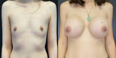 Breast Augmentation Gallery - Patient 55272484 - Image 1