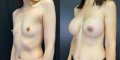 Breast Augmentation Gallery - Patient 55272484 - Image 2