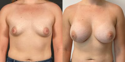 Breast Augmentation Gallery - Patient 55272481 - Image 1