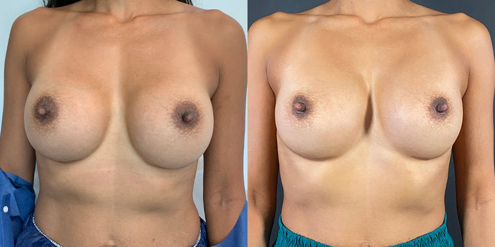 Breast Augmentation Revision Gallery - Patient 56142674 - Image 1