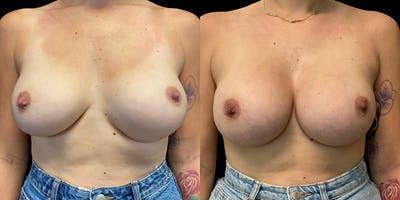 Breast Augmentation Revision Gallery - Patient 56142675 - Image 1