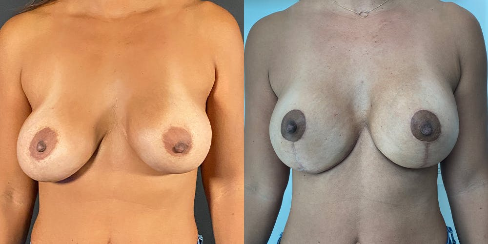 Breast Augmentation Revision Gallery - Patient 56142676 - Image 1