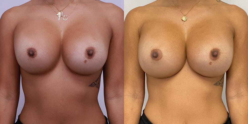 Breast Augmentation Revision Gallery - Patient 56143249 - Image 1