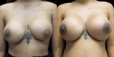 Breast Augmentation Revision Gallery - Patient 56143248 - Image 1