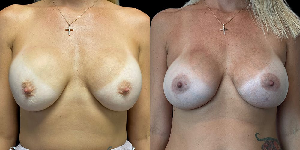 Breast Augmentation Revision Gallery - Patient 56143247 - Image 1
