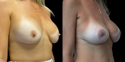 Breast Augmentation Revision Gallery - Patient 56143247 - Image 2
