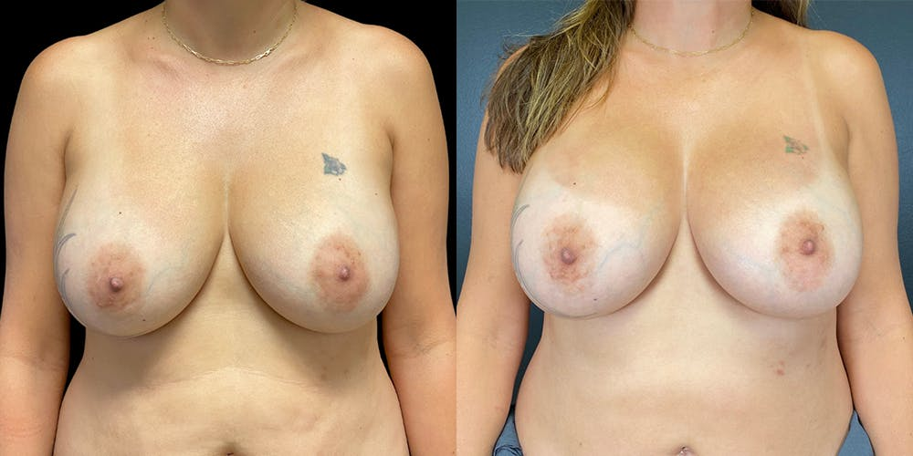 Breast Augmentation Revision Gallery - Patient 56175576 - Image 1