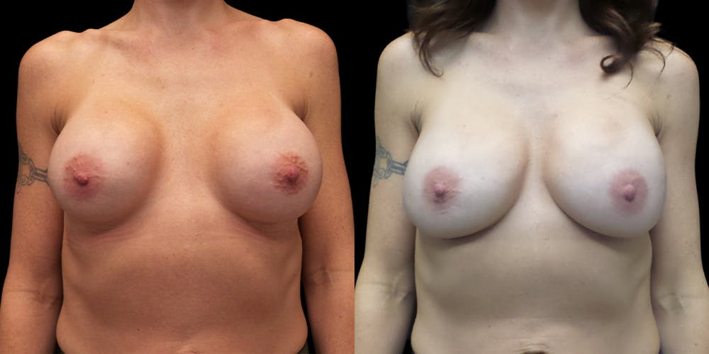 Breast Augmentation Revision Gallery - Patient 56175577 - Image 1