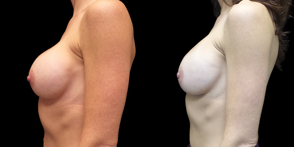 Breast Augmentation Revision Gallery - Patient 56175577 - Image 2