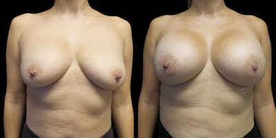 Breast Augmentation Revision Gallery - Patient 56175578 - Image 1