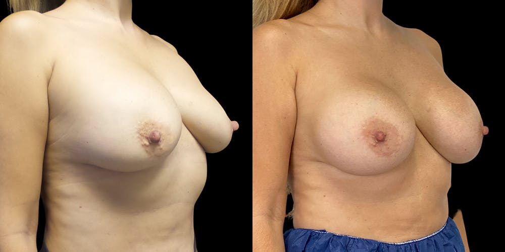Breast Augmentation Revision Gallery - Patient 56175578 - Image 2