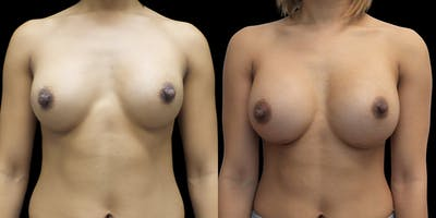 Breast Augmentation Revision Gallery - Patient 56175579 - Image 1