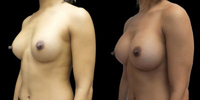 Breast Augmentation Revision Gallery - Patient 56175579 - Image 2