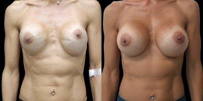 Breast Augmentation Revision Gallery - Patient 56175972 - Image 1