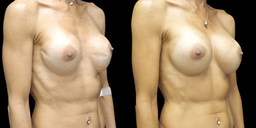 Breast Augmentation Revision Gallery - Patient 56175972 - Image 2