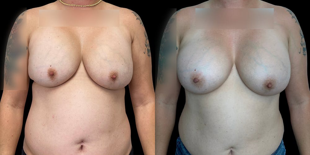 Breast Augmentation Revision Gallery - Patient 56175973 - Image 1