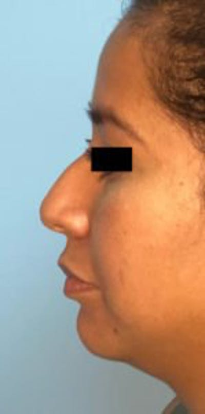 Non-Surgical Rhinoplasty Gallery - Patient 33513102 - Image 1