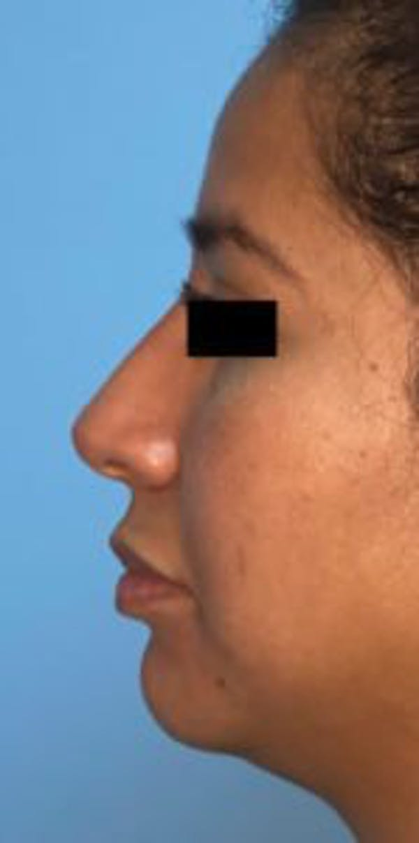 Non-Surgical Rhinoplasty Gallery - Patient 33513102 - Image 2