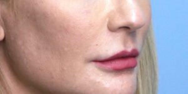Lip Lift Gallery - Patient 33513134 - Image 1