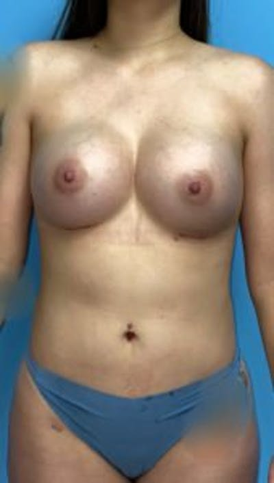 Breast Augmentation Gallery - Patient 33513194 - Image 2