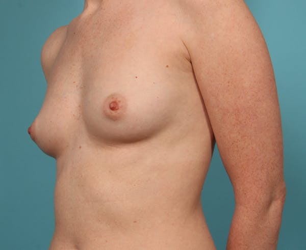 Breast Augmentation Gallery - Patient 33513197 - Image 3