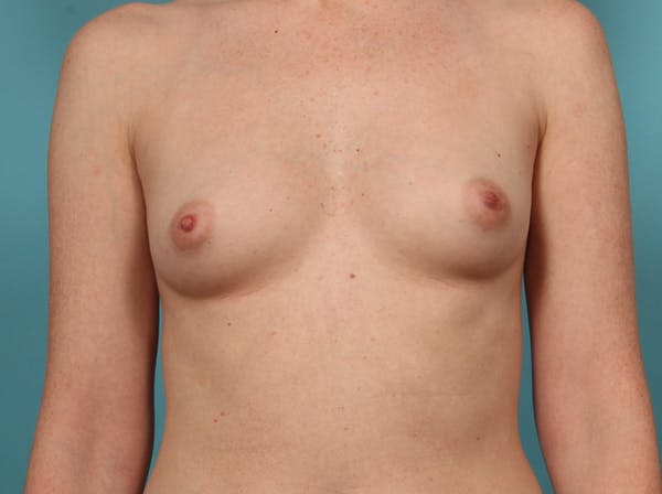 Breast Augmentation Gallery - Patient 33513197 - Image 1