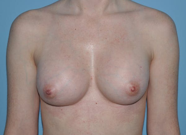 Breast Augmentation Gallery - Patient 33513197 - Image 2