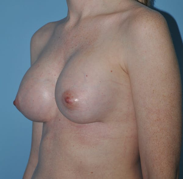 Breast Augmentation Gallery - Patient 33513197 - Image 4