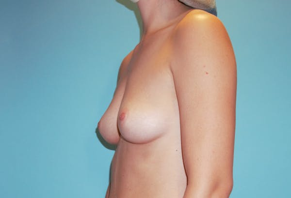 Breast Augmentation Gallery - Patient 33513198 - Image 3