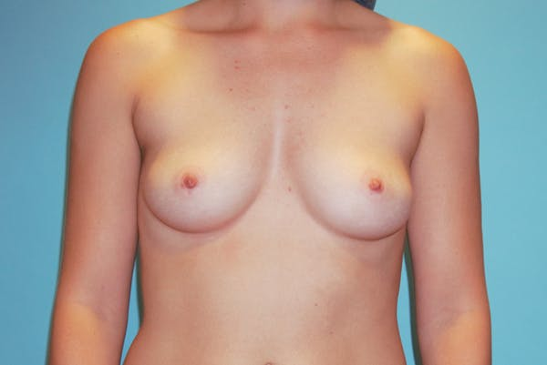 Breast Augmentation Gallery - Patient 33513198 - Image 1