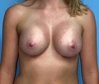 Breast Augmentation Gallery - Patient 33513198 - Image 2