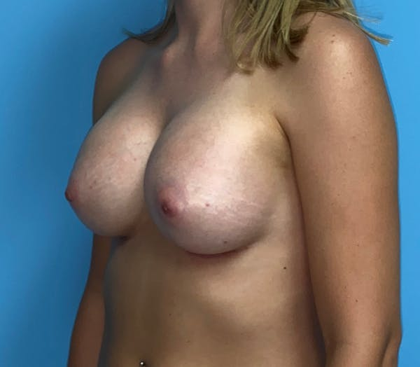 Breast Augmentation Gallery - Patient 33513198 - Image 4