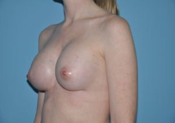 Breast Augmentation Gallery - Patient 33513199 - Image 2
