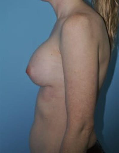 Breast Augmentation Gallery - Patient 33513199 - Image 4