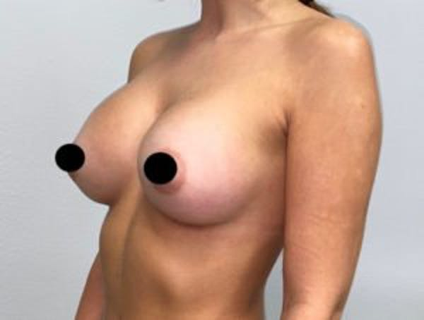 Breast Augmentation Gallery - Patient 33513200 - Image 2
