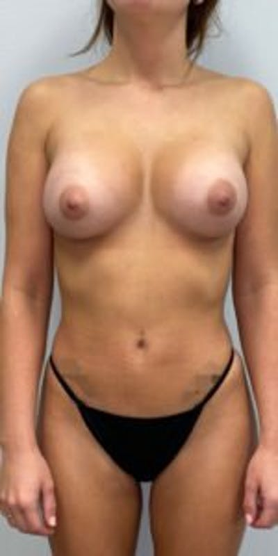 Breast Augmentation Gallery - Patient 33513201 - Image 2