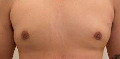 Gynecomastia Gallery - Patient 33513263 - Image 2