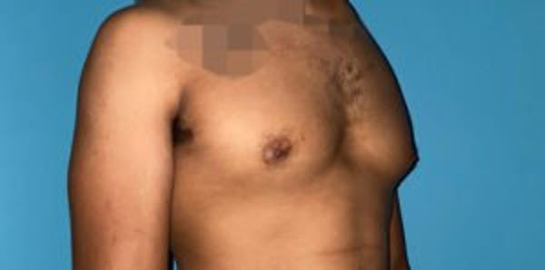 Gynecomastia Gallery - Patient 33513264 - Image 1