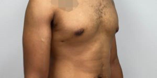 Gynecomastia Gallery - Patient 33513264 - Image 2
