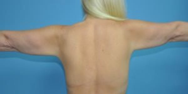 Arm Lift Gallery - Patient 33514346 - Image 1
