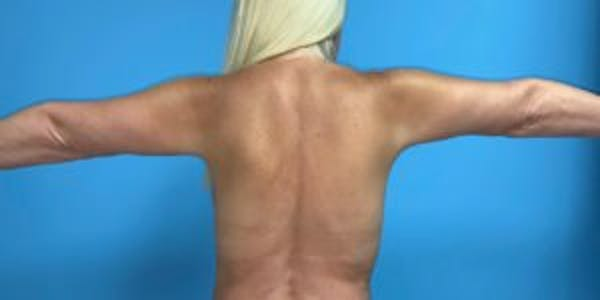 Arm Lift Gallery - Patient 33514346 - Image 2