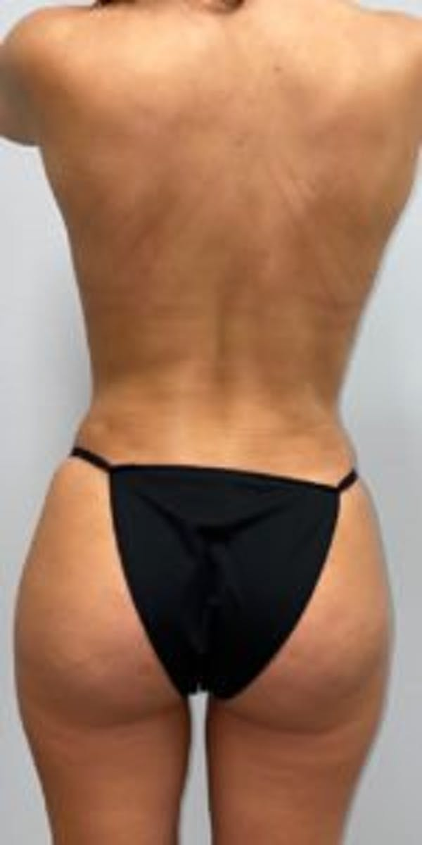 Butt Lift Gallery - Patient 33514428 - Image 4