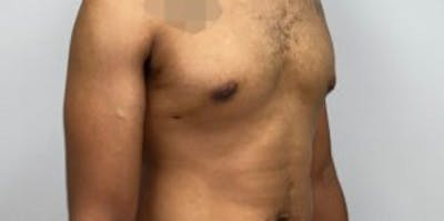 Liposuction Gallery - Patient 33514450 - Image 2