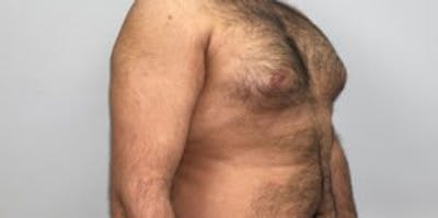 Liposuction Gallery - Patient 33514451 - Image 1